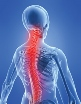 Front Range Spine-Neurosurgery: Michael Rauzzino, MD